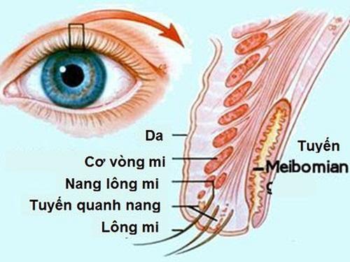 Sụp mí mắt ở người lớn - 5 nguyên nhân & cách khắc phục hiệu quả 3