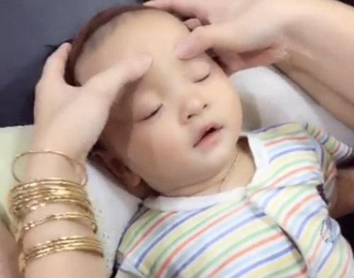 Sụp mí mắt ở trẻ em - Nguyên nhân & Cách khắc phục Hiệu Quả nhất 4