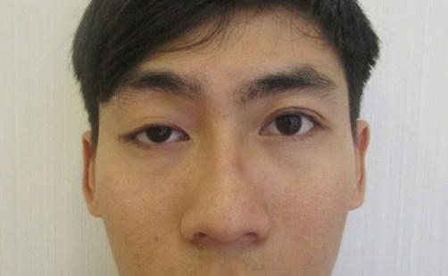Sụp mí mắt trái/phải - Nguyên nhân & phương pháp khắc phục THẦN KỲ 2