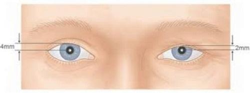 Sụp mí mắt trái/phải - Nguyên nhân & phương pháp khắc phục THẦN KỲ 3