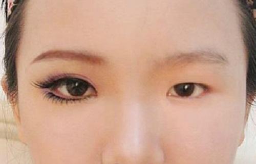 Sụp mí mắt trái/phải - Nguyên nhân & phương pháp khắc phục THẦN KỲ 4