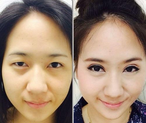 Tác hại của cắt mí mắt NGHIÊM TRỌNG đến từ việc thiếu hiểu biết 3