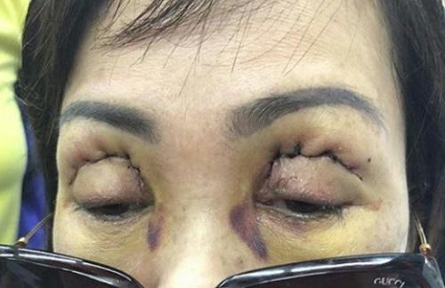 Tác hại của cắt mí mắt NGHIÊM TRỌNG đến từ việc thiếu hiểu biết 9