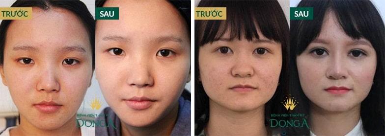 Tạo khóe mắt trong - tiểu phẫu HIỆN ĐẠI ko đau giúp mắt TO TRÒN 7