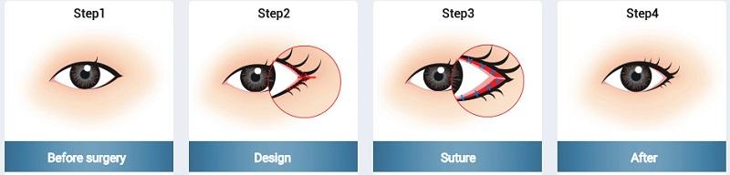 Tạo khóe mắt ngoài ko đau ko sưng cho đôi mắt to tròn HOÀN HẢO 3