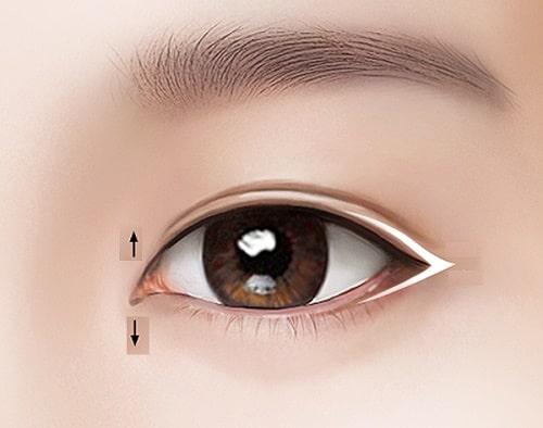 Tạo khóe mắt trong - tiểu phẫu HIỆN ĐẠI ko đau giúp mắt TO TRÒN 5