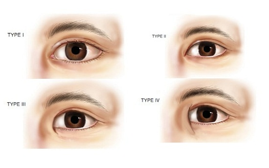 Tạo khóe mắt trong - tiểu phẫu HIỆN ĐẠI ko đau giúp mắt TO TRÒN 1