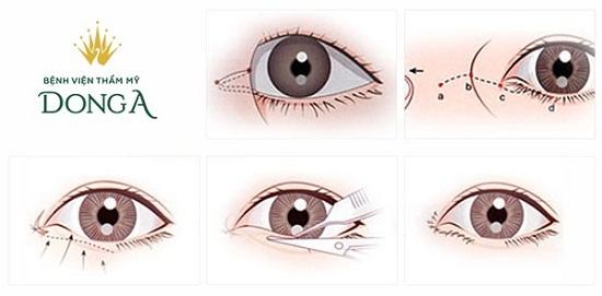 Tạo khóe mắt trong - tiểu phẫu HIỆN ĐẠI ko đau giúp mắt TO TRÒN 4
