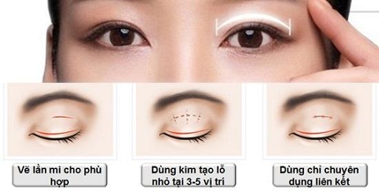 Tạo mắt 2 mí bằng chỉ - Giải pháp HIỆN ĐẠI cho mắt ĐẸP to tròn cân đối 1