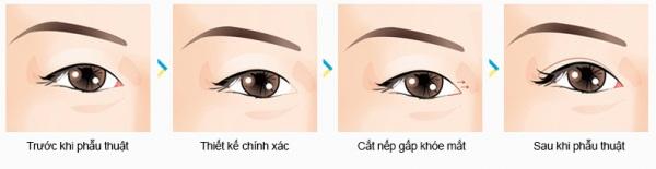 """Thẩm mỹ mắt to cho đôi mắt """"BỒ CÂU"""" quyến rũ"""