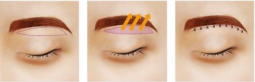 Treo chân mày ở đâu đẹp UY TÍN - AN TOÀN để đôi mắt TRẺ ĐẸP 2