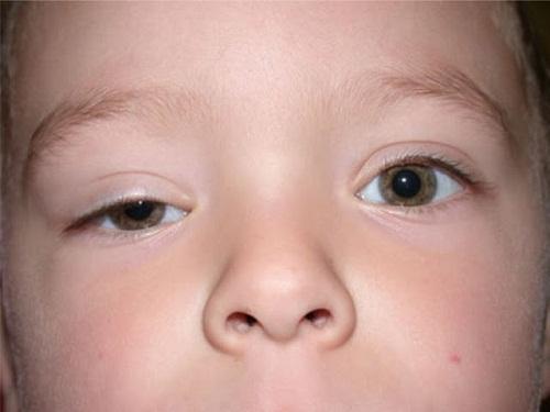 Triệu chứng sụp mí mắt và 2 cách khắc phục hiệu quả theo từng mức độ 2