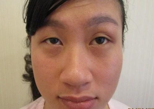 Triệu chứng sụp mí mắt và 2 cách khắc phục hiệu quả theo từng mức độ 1