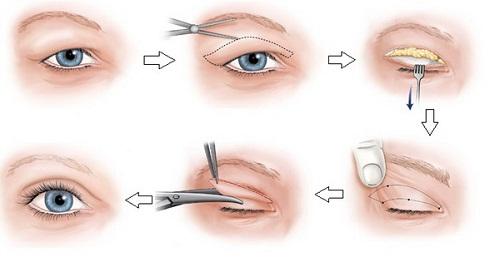 Triệu chứng sụp mí mắt và 2 cách khắc phục hiệu quả theo từng mức độ 5