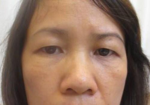 Triệu chứng sụp mí mắt và 2 cách khắc phục hiệu quả theo từng mức độ 3