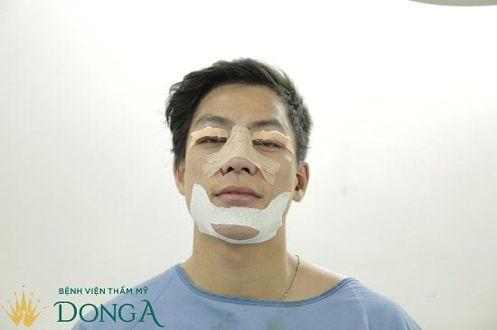 Trải qua gần 60 phút trong phòng phẫu thuật, Đào Văn Tuấn đã dần thay đổi diện mạo 5
