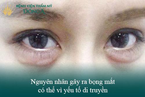 4 Cách xóa bọng mắt không phẫu thuật Phổ biến - Đơn Giản - Hiệu Quả 2
