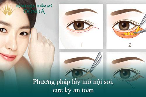 4 Cách xóa bọng mắt không phẫu thuật Phổ biến - Đơn Giản - Hiệu Quả 5