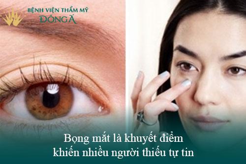 4 Cách xóa bọng mắt không phẫu thuật Phổ biến - Đơn Giản - Hiệu Quả 1